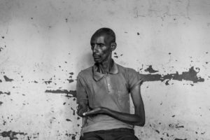 A man shows his injuries inflicted by a group of hutu men and left for dead in the forest for a week during ethnic violence in 1994.